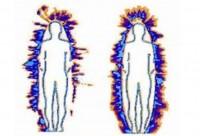 Kirlianova fotografija (tijelo)